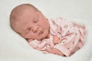新生儿脐炎的症状新生儿脐炎要如何治疗